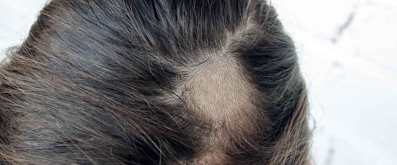 Saç nezlesinin tedavi yöntemleri nelerdir