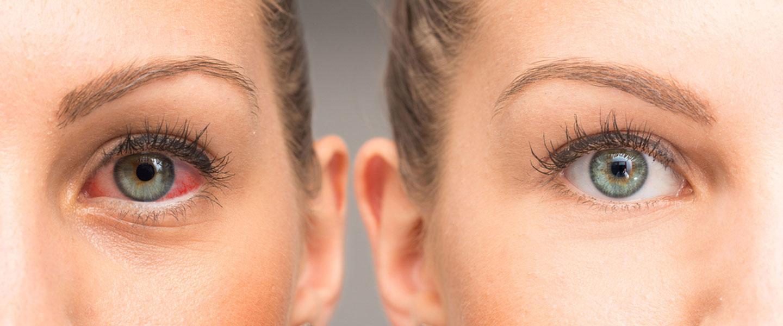 Göz kuruluğuna ne iyi gelir?