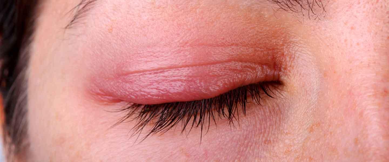 Blefarit (göz kapağı iltihabı)