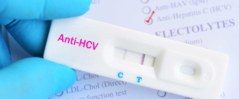 Anti HCV
